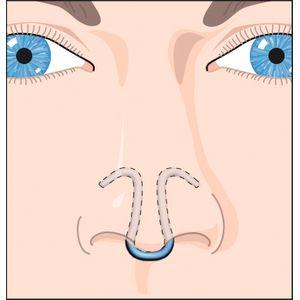 Dilatateur nasal Clip Air